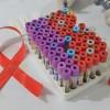 A doua persoana din lume vindecata de virusul HIV