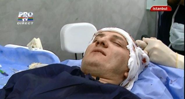 traistariu3 Mihai Traistariu, plin de sange! Si a facut implant de par!