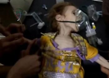 "malnutritia boala care ucide lent copiii sirieni 350x251 Bucurestenii, implicati in campania ""Salvati copiii sirieni"""