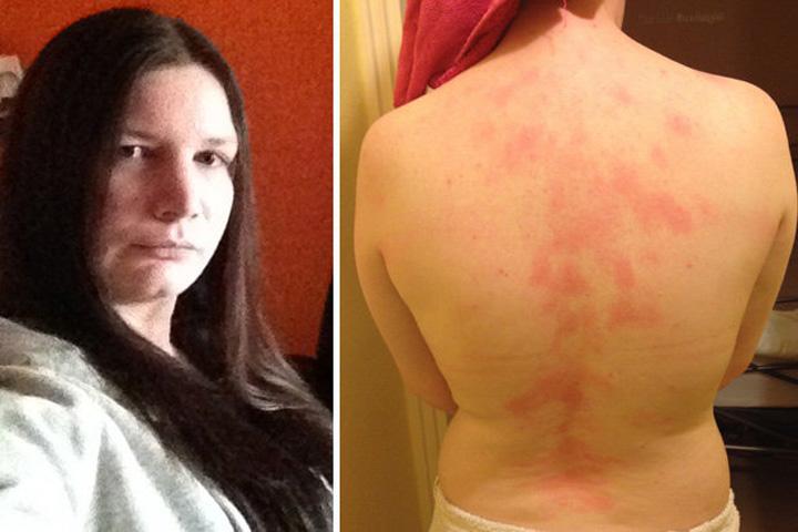 alergie Femeia asta este alergica la sotul ei! Daca el o saruta, ea face imediat urticarie