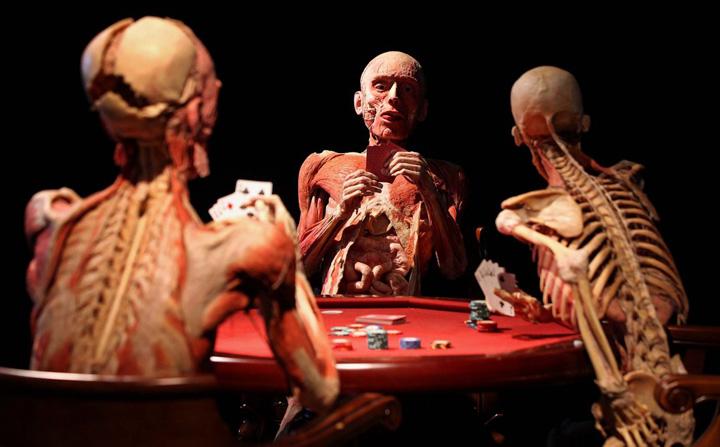 milano 3 O controversata expozitie de cadavre la Milano