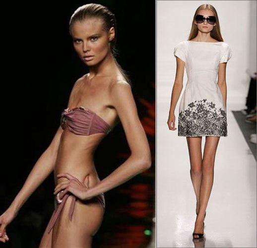 au murit pe catwalk din cauza anorexiei modele care au fost invinse de anorexie 518x500 Franta interzice manechinele skinny !