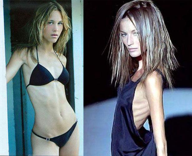 au murit pe catwalk din cauza anorexiei modele care au fost invinse de anorexie 1 616x500 Franta interzice manechinele skinny !