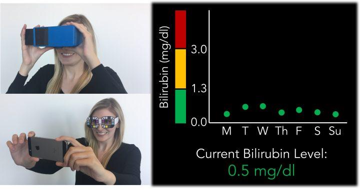 biliscreen 720x381 Selfie ul care depisteaza cancerul!