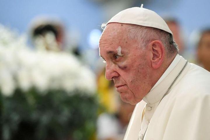 papa accident Centura, centura, Sanctitatea Voastra!!