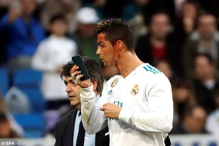 Ronaldo Ronaldo, evaluandu si paguba