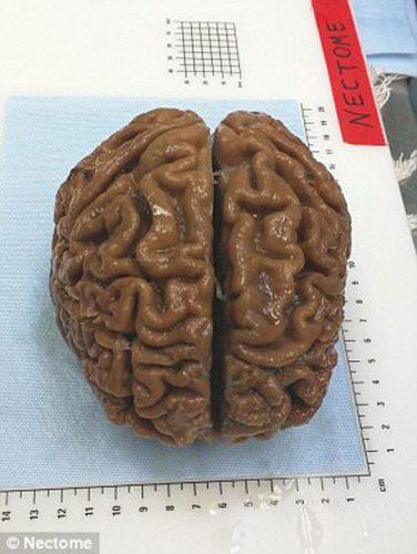 creier imbalsamat 376x500 Un miliardar, pe lista de asteptare pentru a fi ... ucis