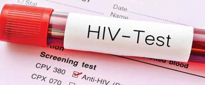 hiv Virusul HIV va deveni incontrolabil