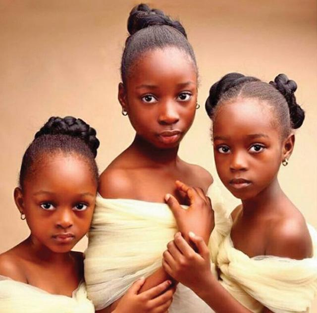 surori Copila care a cucerit retelele de socializare cu ochii ei