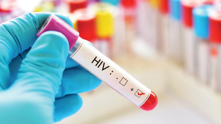 hiv 160.000 de noi cazuri HIV in Europa